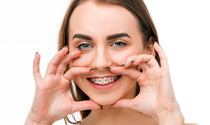 รีวิว ไหมขัดฟัน สำหรับคนจัดฟัน ยี่ห้อไหนดี ซื้อที่ไหน ปี 2021